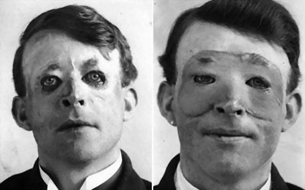 Вальтер Ио — один из первых, кому была сделана пластическая операция и пересадка кожи, 1917 год.