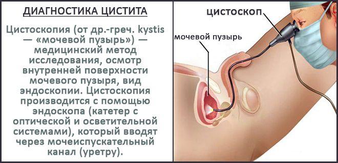 Диагностика цистита в картинке