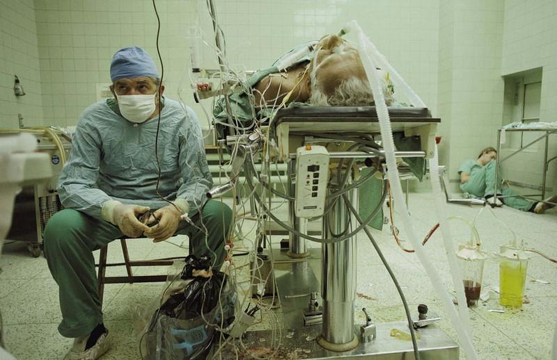 Доктор Збигнев Релига после 23-часовой операции по пересадке сердца. 1987 год