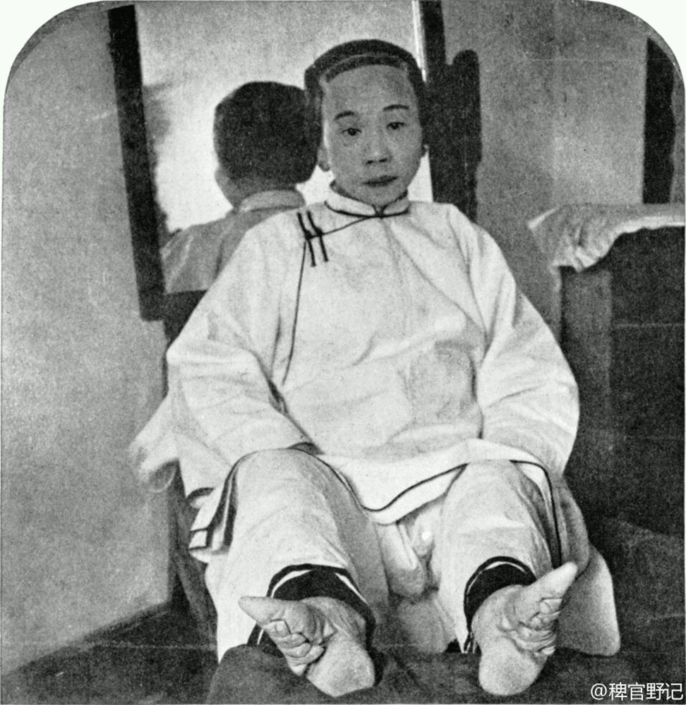 Такие ноги в Китае традиционно назывались «золотыми лотосами», а от величины деформированной стопы напрямую зависел престиж невесты.